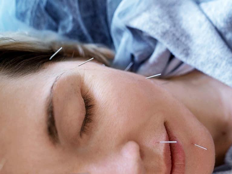 Si En TCM Acupuncture